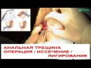 Анальная трещина 🗜 Операция по иссечению радиоволновым способом лигирование