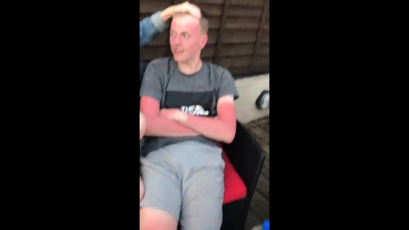 MUSIC - lad gets really bad tan