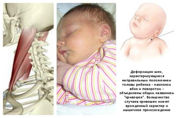 Причины кривошеи у новорожденных Деформация