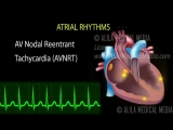 cardiac arrhythmias - -