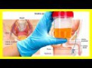 Tu orina puede advertirte de diversas enfermedades según su color