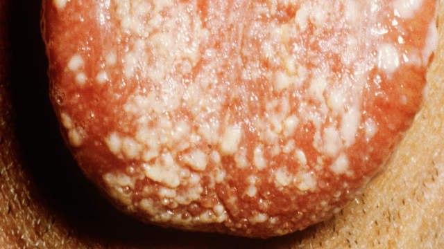 фотография дрожжевой инфекции на языке