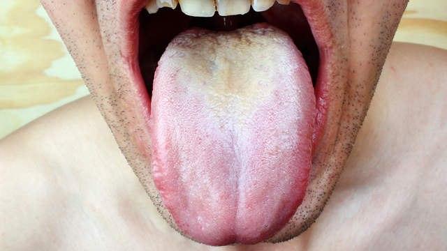Молочница - это дрожжевая инфекция во рту