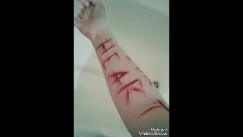 раны не глубоки