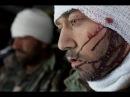 В шаге от войны Раненые в Сирии вагнеровцы