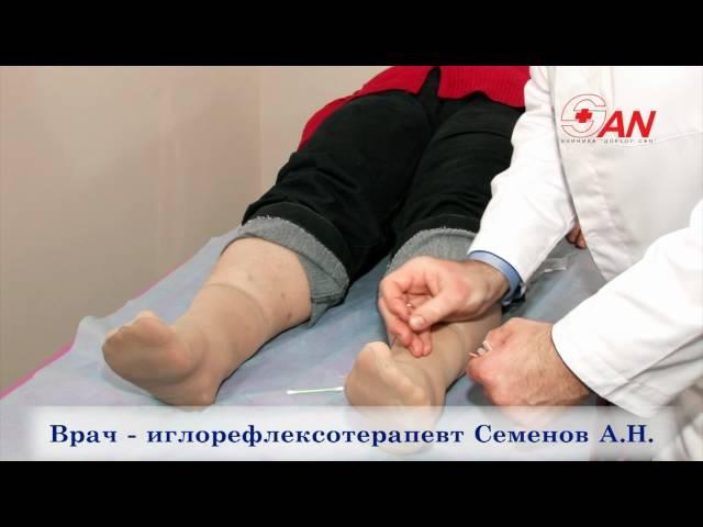 Лечение табакокурения иглоукалыванием.