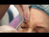 Ботулинотерапия препаратом диспорт. Врач-косметолог Таисия Олеговна Пешина