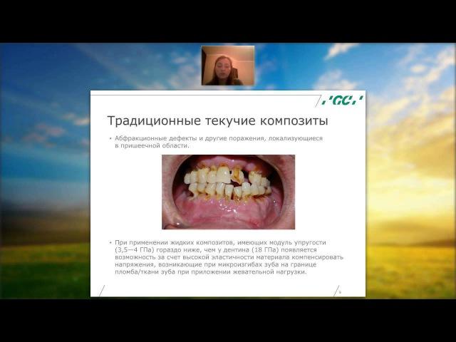 Вебинар НОВЫЕ ВОЗМОЖНОСТИ ТЕКУЧИХ КОМПОЗИТОВ (231015)
