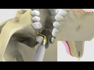 PIEZOSURGERY® Implant site preparation Animation