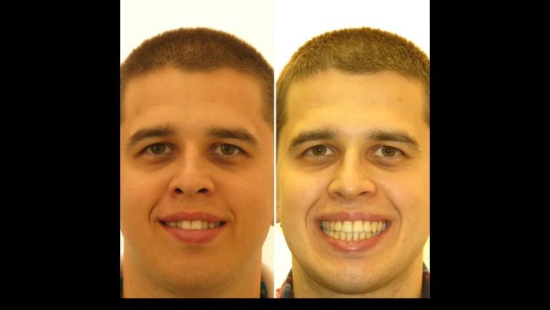 Расширение нёбаорт.подготовкаостеотомия челюстей