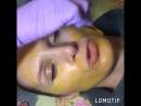 Жёлтый ретиноевый пилинг