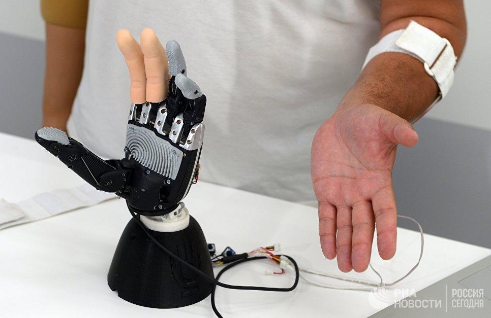Разработанный в Великом Новгороде бионический протез руки в 10 раз дешевле аналогов