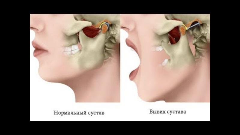 Самостоятельная правка нижней челюсти. Правка ВНЧС