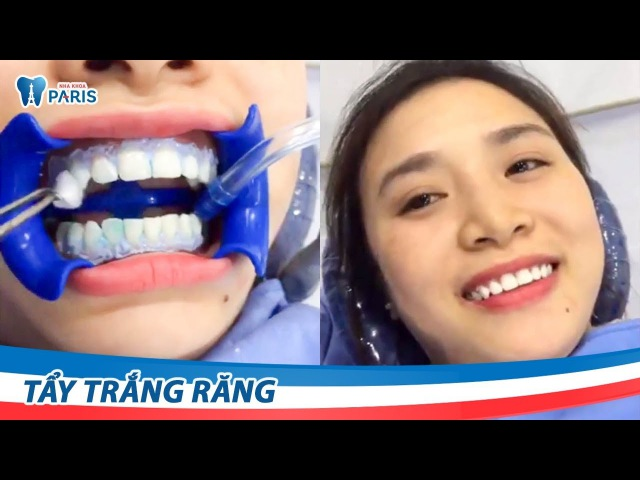 Quy trình tẩy trắng răng bằng công nghệ Laser Whitening