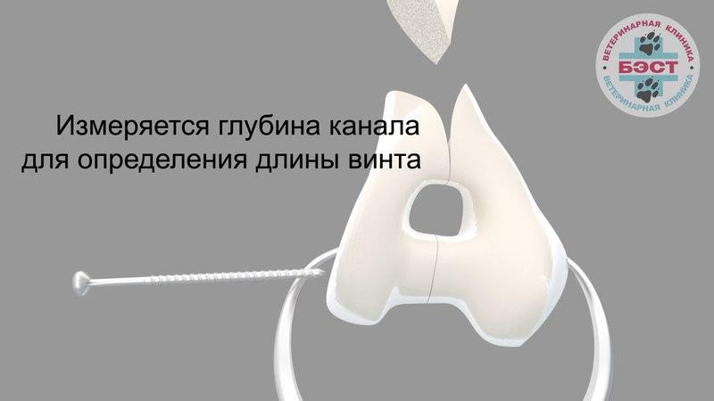 Фиксация полного внутрисуставного перелома дистального сегмента плечевой кости компрессионным винтом и нейтрализующей LC-DCP пластиной