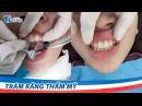 Trám răng thẩm mỹ Laser Tech Khắc phục răng thưa nhanh chóng