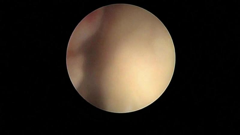 Дефект миометрия после фокусной ультразвуковой аблации по поводу миомы матки