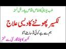 Nakseer Photny Ka Asan Desi Elaj Nakseer Ka Ilaj In Urdu Garmi Mein Nakseer Ke Asan Nuskhe