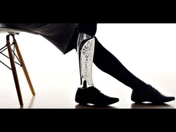 О 3D, новейших технологиях протезирования и в чем Алматы первый по Казахстану » Freewka.com - Смотреть онлайн в хорощем качестве