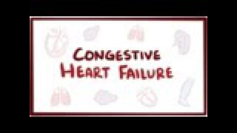 Congestive heart failure (CHF) - systolic, diastolic, left side, right side, symptoms