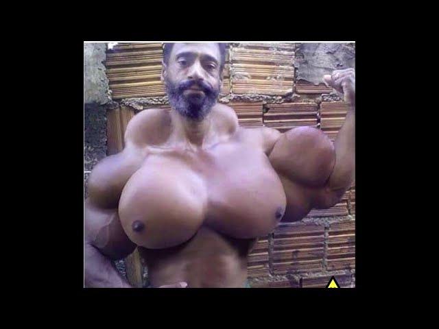 ☠Synthol Man - STEROID USE GONE 'TOOOO' FAR!!☠