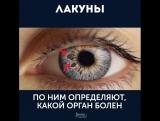 Твои глаза расскажут всё о твоём здоровье!