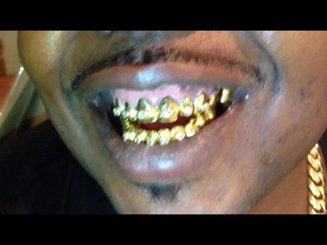 Landogolds 22k with the big diamonds goldteeth