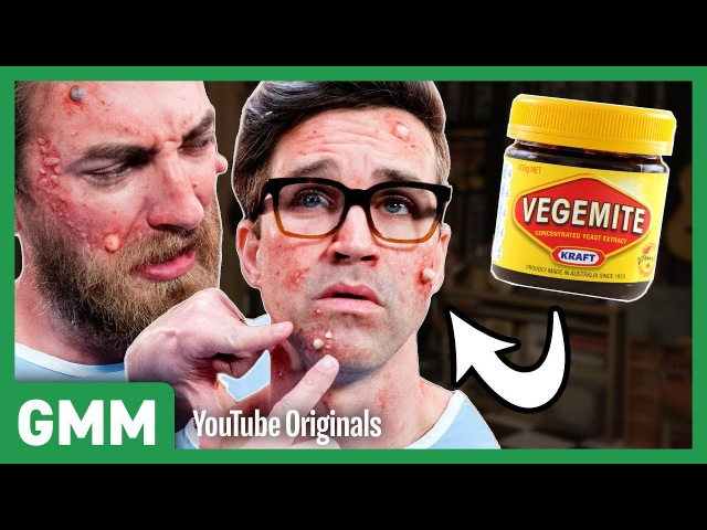 Pimple Popping Challenge ft. Dr. Pimple Popper