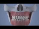 Что может быть,если не удалять зуб мудрости