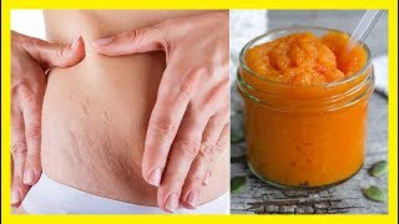 Remedio con zanahorias para atenuar las estrías de la piel