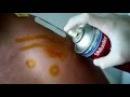 Болело плечо Установили источник боли и выполнили блокаду Ключично акромиальн