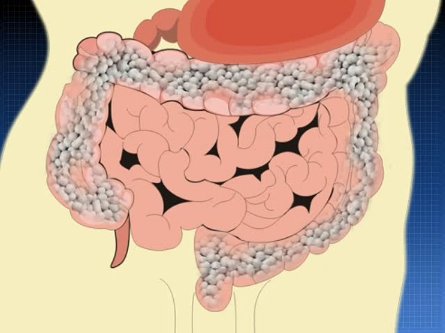 Салофальк - лекарственные формы, болезнь Крона, ВЗК ©