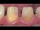 Препарирование зубов под микроскопом