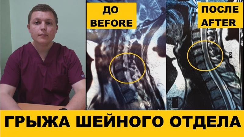 Грыжа Диска ВЫЛЕЧИЛ БЕЗ ОПЕРАЦИИ Herniated Disc Treatment