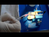 Air bubble evacuation in root canal irrigation experiment