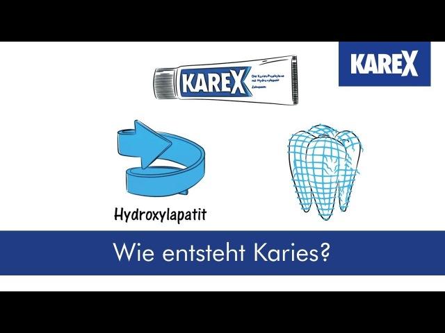 Karies vorbeugen - Moderner Karies-Schutz ohne Fluorid mit Karex Zahnpasta