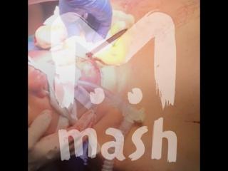 Московские врачи спасли мужчину, которому вонзили  шпагу в шею