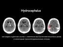 Инсульт Stroke series гипертензивные кровоизлияния