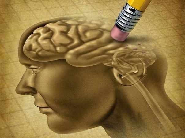 10 вещей, отрицательно влияющих на мозг  1. Недосыпание Это знакомо
