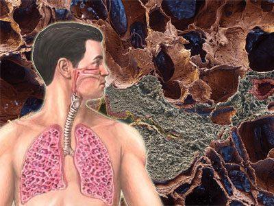Очаговый фиброз легких