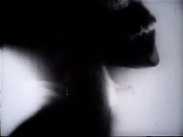 [X-ray film]
