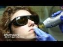 Лазерная эпиляция верхней губы с помощью александритового лазера CANDELA GENTLELASE PRO