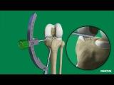 Пластика ПКС хирургическая техника восстановления ПКС имплантатами Inion