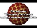 Папилломы - Народные средства и методы лечения папиллом