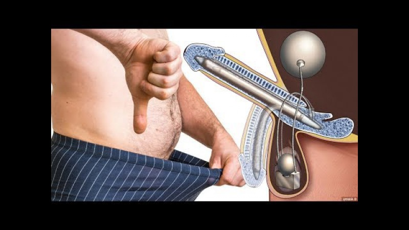 Are You Suffering From Normal Sexual Activity? 4 Symptoms Of Erectile Dysfunction