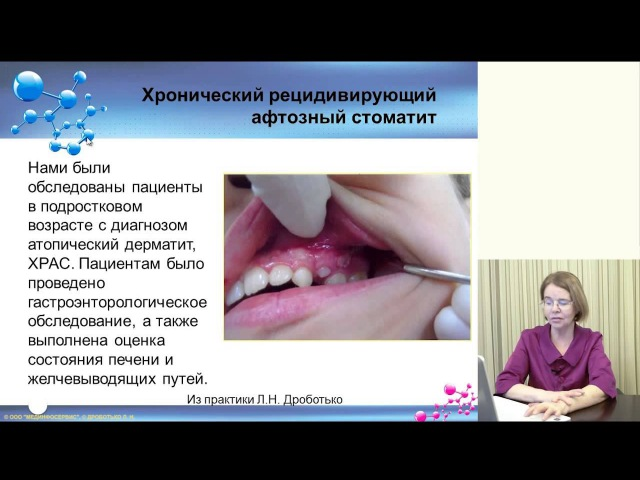 34 Иммунокоррекция при лечениизаболеваний слизистой полости рта