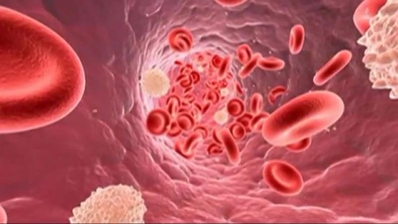 Сепсис крови