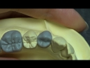 Live wax up - Lower 1st premolar (occlusion)