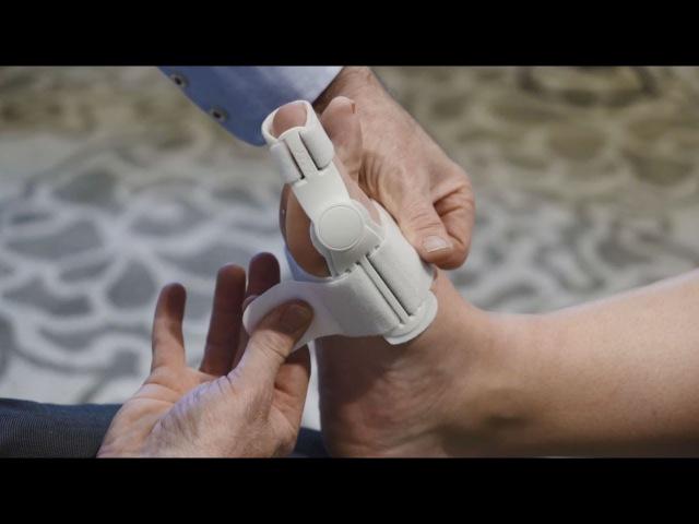 The Benefits of Using an Aircast Hallufix Bunion Aid Splint - Waikato Podiatry Clinic
