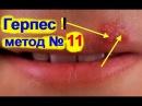 Как быстро вылечить Герпес на губах? - № 11. Если у тебя простуда на губе? Знай больше всех